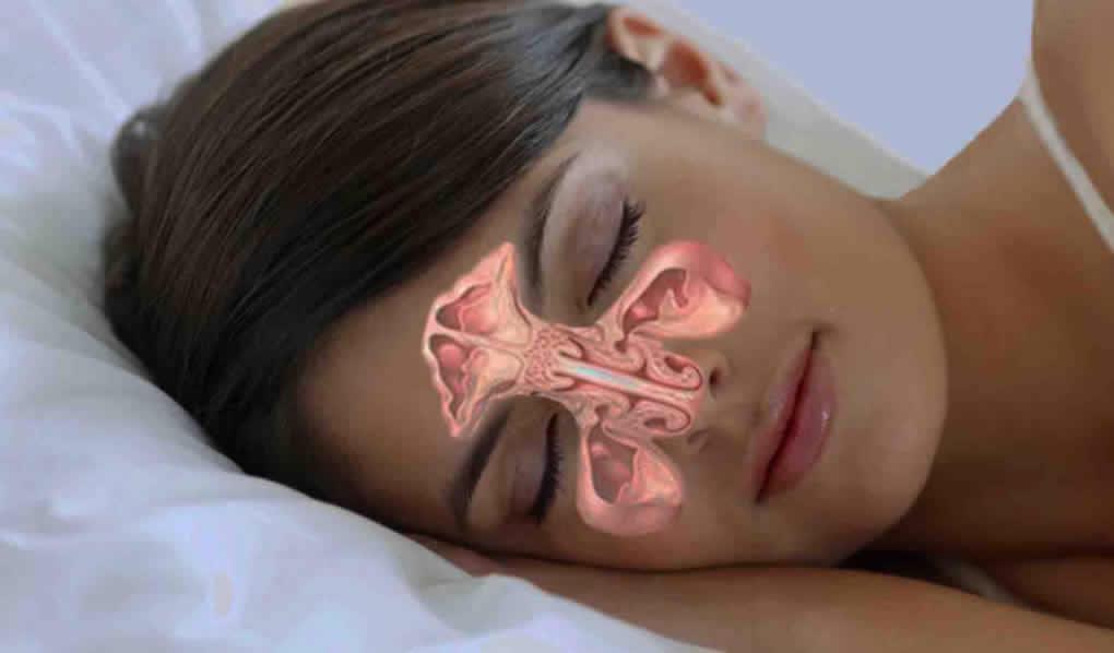 Prirodni lijek za probleme sa sinusima