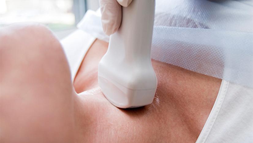 Hipotireoza: Liječenje prirodnim putem