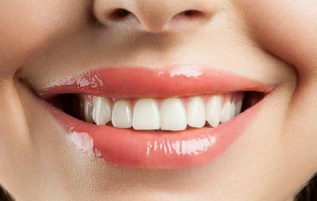 djevojka bijeli zubi