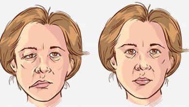 paraliza nervusa facialisa lica misica