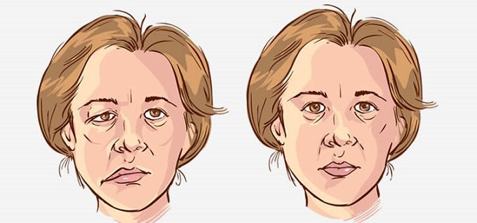 Da li mokra kosa i promaja mogu da izazovu paralizu mišića na licu?