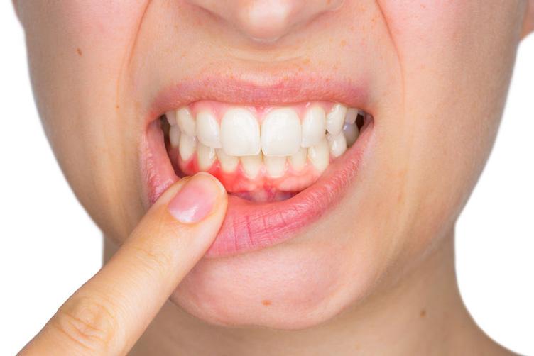 Većina ljudi na svijetu ima ovu bolest zuba: Šta je izaziva i kako se liječi?