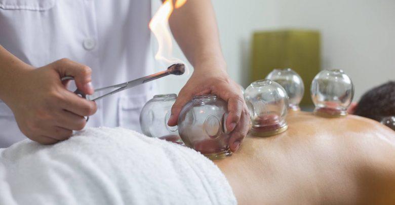 hidzama cupping terapija pustanje krvi