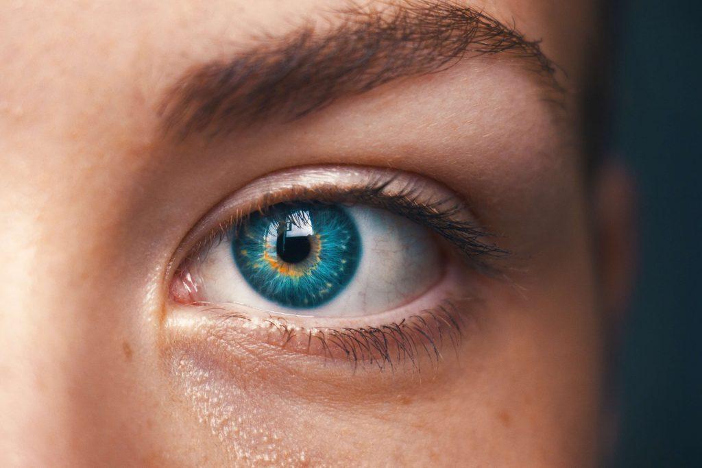 Kako nastaju tamni kolutovi ispod očiju i kako ih izbjeći