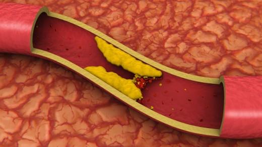 Lijek za holesterol i čišćenje krvnih sudova: Eliksir mladosti