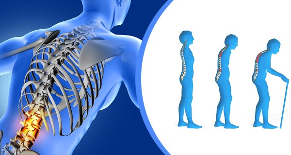 Osteoporoza (poroznost kostiju)