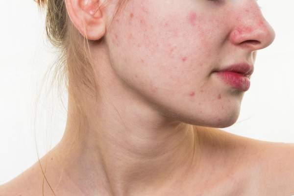 Šta akne na vašem licu otkrivaju o vašem zdravlju?