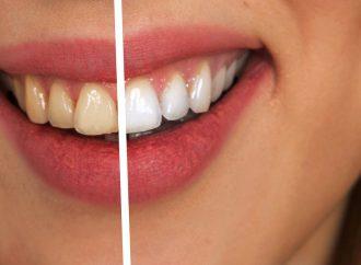 Da li je izbjeljivanje zubi štetno?